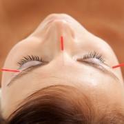 Akupunktúra – mit kell tudni róla?