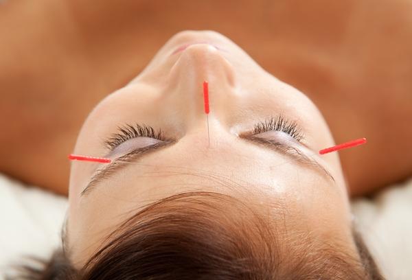 Migrén kezelése akupunktúrával a fejen lévő meridiánok vonalába szúrt tűkkel.