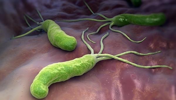 Helicobacter pylori baktérium.