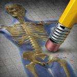 Egy emberi csontváz csípőjét radírozzák le egy emblematikus rajzon egy rózsaszín radírral ellátott ceruza végével, utalva ezzel a csontritkulásra.