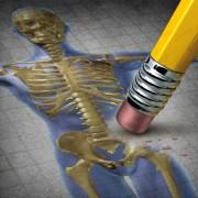 Csak kalciummal megelőzhető a csontritkulás?