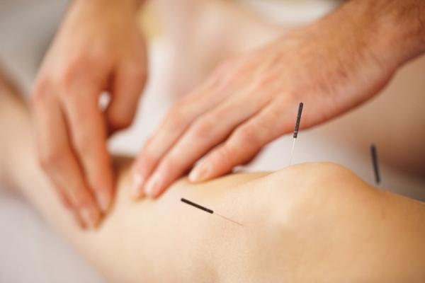 Páciens lábszárát tapintja egy terapeuta, térdnél már beszúrt akupunktúrás tűk találhatók.