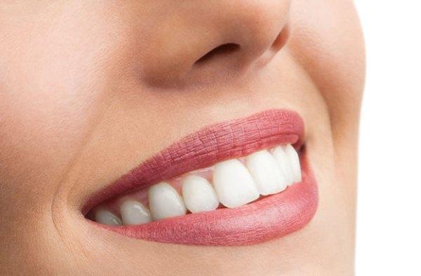 Ápolt női száj makrofotója hófehér, csillogó, szabályos fogakkal.