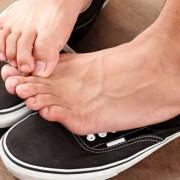 A lábgomba kifejlődésének feltétele mindig a gyenge immunrendszer
