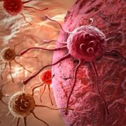 Megvédhetjük magunkat a ráktól?