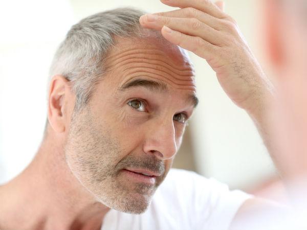 Őszülő, kopaszodó férfi tükörben a feje tetején haját vizsgálja.