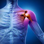 A váll csontjainak elhelyezkedése az emberi testben, az elszíneződött rész gyulladásra utal.