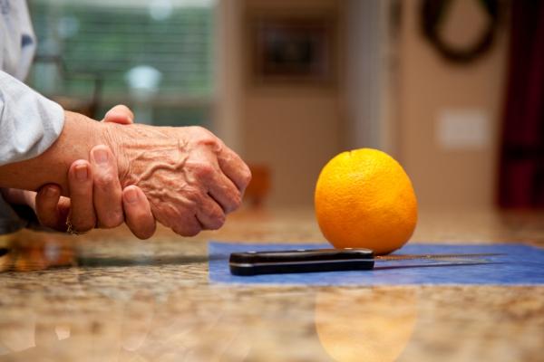 Az asztalon narancs és kés, mellette egy idős női kéz csuklóját fájlalja, valószínűleg artrózisa van.