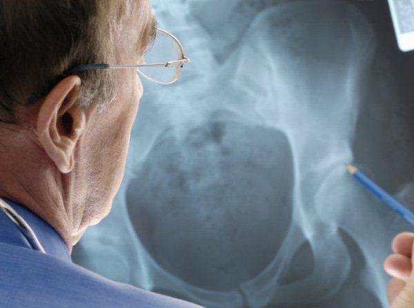 RTG-képen mutat kék ceruzával egy orvos a combcsontnál súlyos csontritkulást.