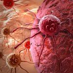 Daganatos sejtek a szervezetben.
