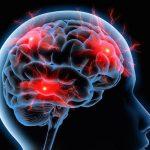 6 gyorstipp migrénes fejfájásra