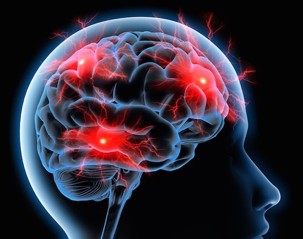 Az agy ereiben lévő migrénes fejfájás sematikus ábrázolása.