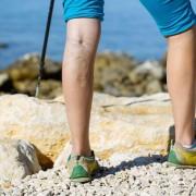 Gyógynövénykúrák visszérbetegség tüneteinek enyhítésére