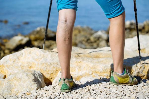 Visszeres lábú hölgy nordic walkingozik egy köves terepen a tenger partjánál.