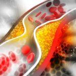 Gyógyító füvek koleszterincsökkentésre