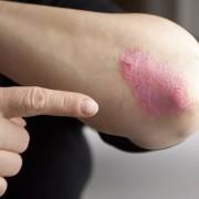 A rettegett bőrbetegség: pikkelysömör