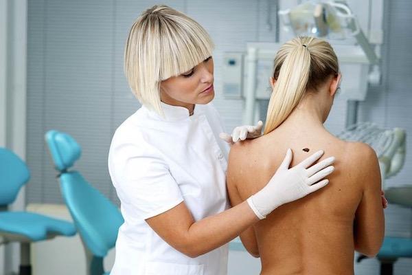Bőrgyógyászati kontrollvizsgálat a rendelőben, egy háton lévő anyajegyet néznek.
