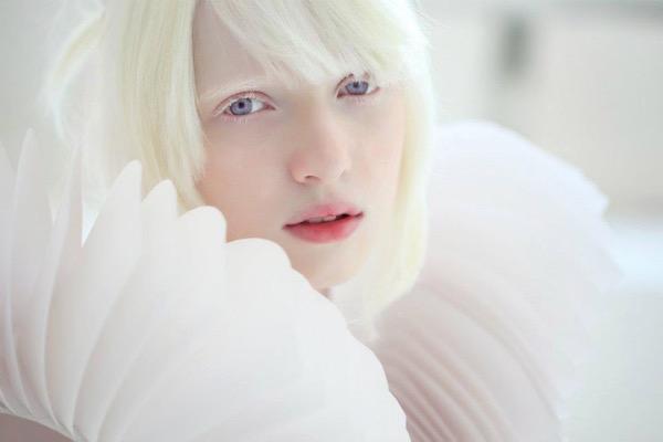 Nastya Kumarova albínó modellről egy fotó.