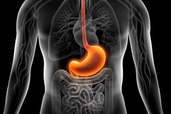 Akut gyomornyálkahártya-gyulladás megjelenítése narancssárga színnel egy emberi testet ábrázoló képen.