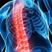 A rettegett kór: oszteoporózis