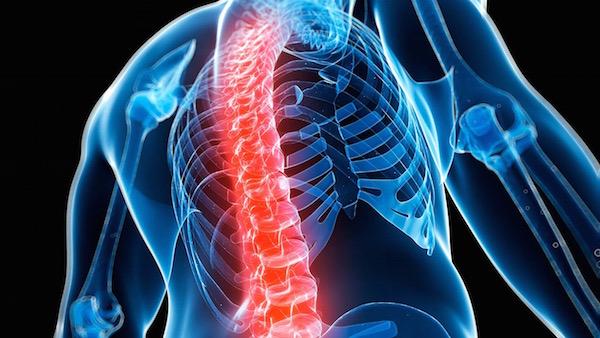 Csontritkulásban szenvedő egyén felsőtestének sematikus csontváza, a gerinc pirossal festve.