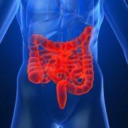 IBS, egy modern kori betegség