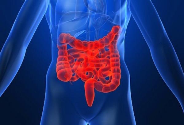 IBS, azaz irritábilisvastagbél-szindróma ábrázolása az emberi testben pirossal kiemelve.