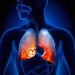 A tüdőgyulladás tünetei és kezelése