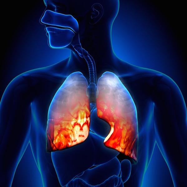 Tüdőgyulladás (pneunomia) megjelenítése egy sematikus ábrán.