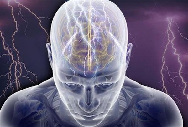 Elektromos aktivitás az agy egyes területein, epilepsziás roham.