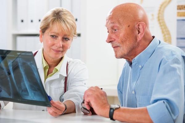 Idősebb férfinak röntgenfelvételt elemez egy doktornő.