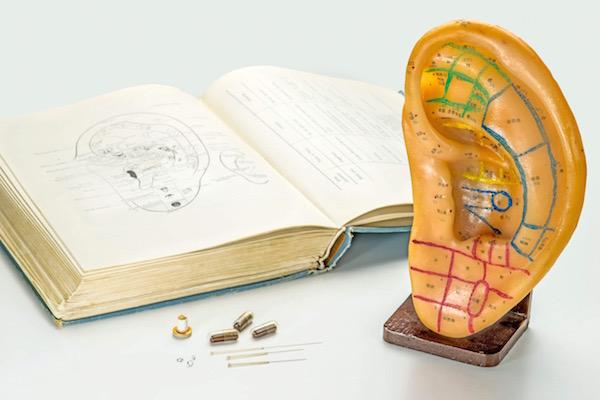 Egy műanyagból készült fülön a bejelölt akupunktúrás pontok területi felosztása.