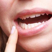 A szervezet vészjelzései: szájnyálkahártya-fekélyek