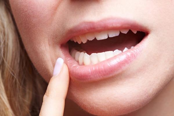 Valamilyen szájbetegségre utaló tünetet vesz észre magán egy faiatal nő.