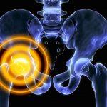 Tévhitek a csontritkulás körül