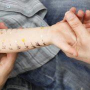 Az alacsony antioxidáns-bevitel és a gyermekkori allergiák közötti összefüggés
