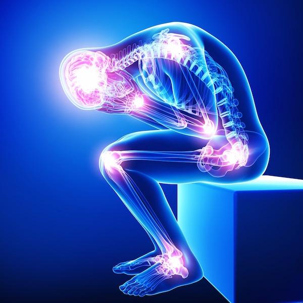 Fibromyalgiára jellemző fájdalmak gócpontjainak megjelölése egy sematikus emberi testen.