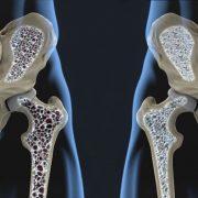 Harc a csontritkulás ellen