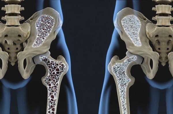 Egymás mellé helyezett, kettévágott műanyag modellen a csontritkulás bemutatása.