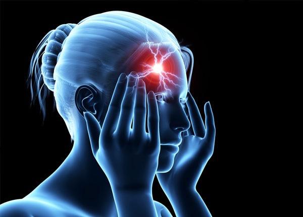 Stroke kiindulási pontja egy női fejen sematikus ábrázolásban.
