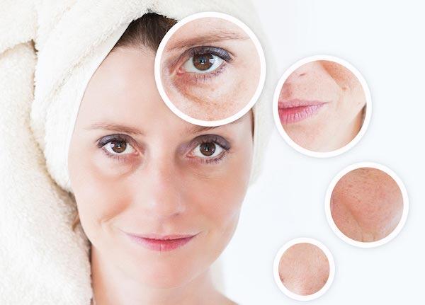 Bőrhibák kiemelve egy női arcon.