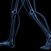 A csontritkulás és a gyaloglás