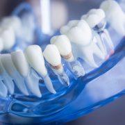 A fogínybetegségek növelik egyes rákbetegségek kockázatát