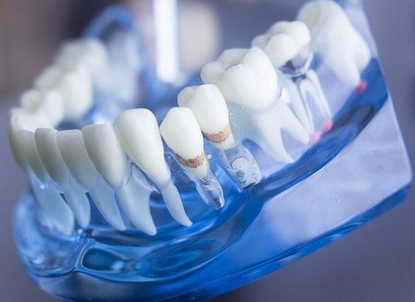 Kék műanyagba ágyazott fogsor, melyen bemutatják a fogkőképződést, a csontfelszívódást és a granulóma kialakulási helyeit.