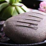 Akupunktúra, a kínai orvoslás csodája