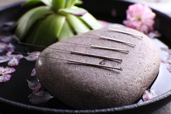 Akupunktúrás tűk egy lapos kavicsdarabon.