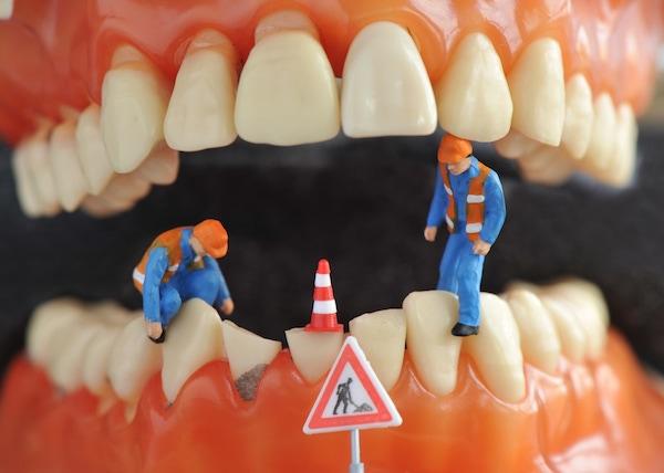"""Alsó és felső fogsor között """"dolgozó"""" munkások, előttük útépítő tábla, az egyik fogon útzáró bója."""