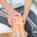 Rheumatoid arthritis és egyéb ízületi megbetegedések