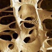 A csontritkulás természetes megközelítése