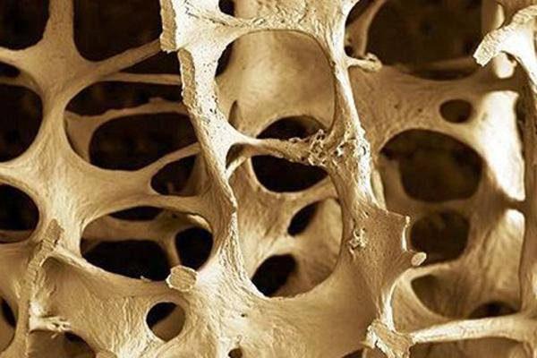 Oszteoporózisos csont nagyított képe.